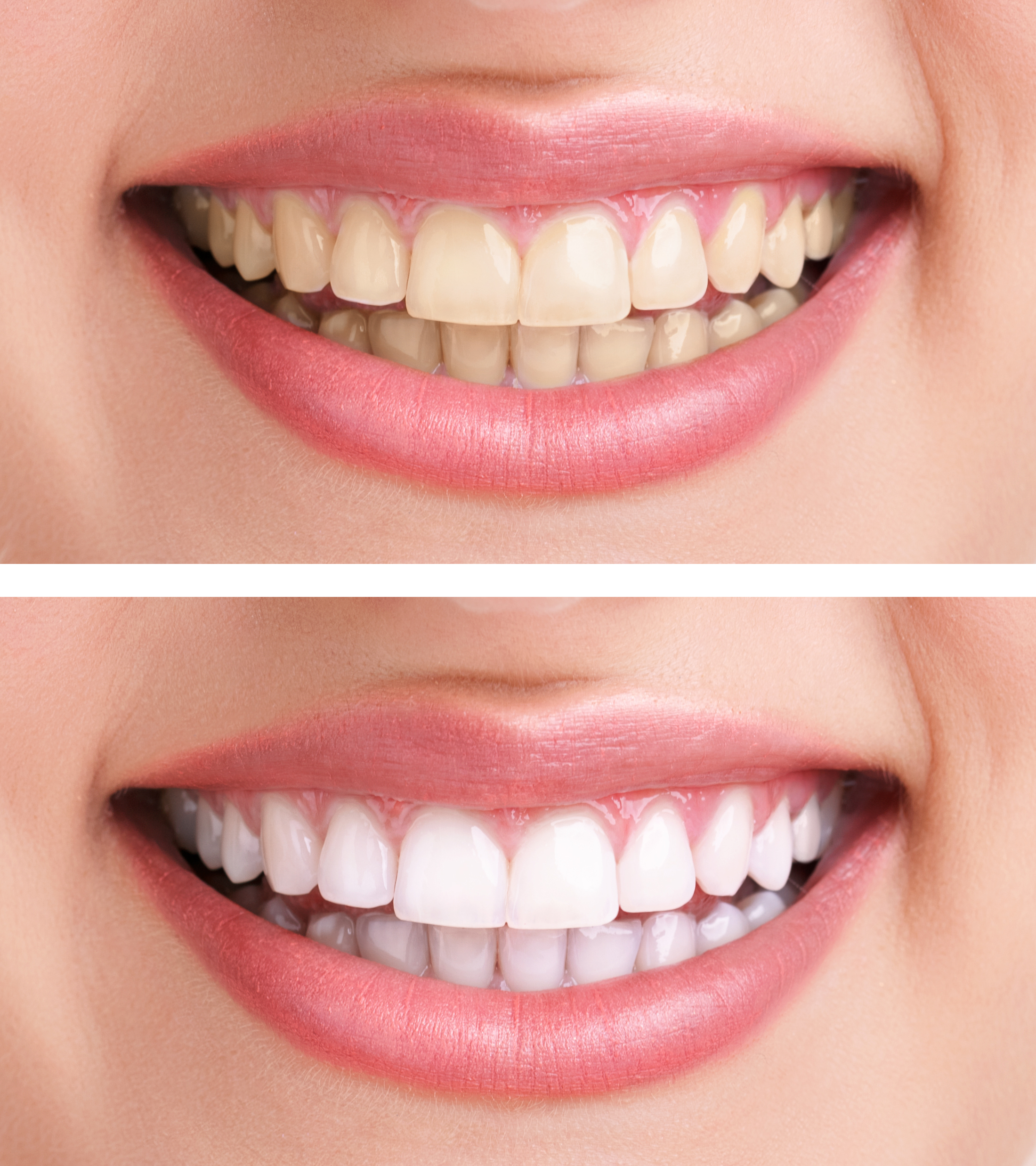 Top 7 Best Whitening Toothpaste Options All Her Things